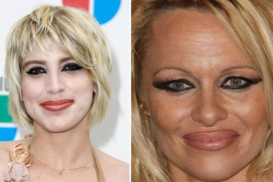 Dani Carlos e Pamela Anderson exageraram no lápis para os lábios. O traço ficou grosseiro e a cor do batom não combinou