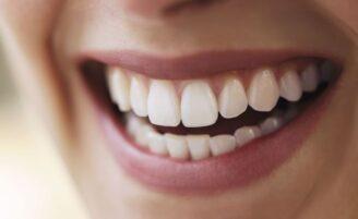 Clareamento dental: garanta um sorriso mais branco