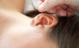 O que é acupuntura auricular?