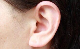 Otoplastia, a cirurgia para acabar com a orelha de abano