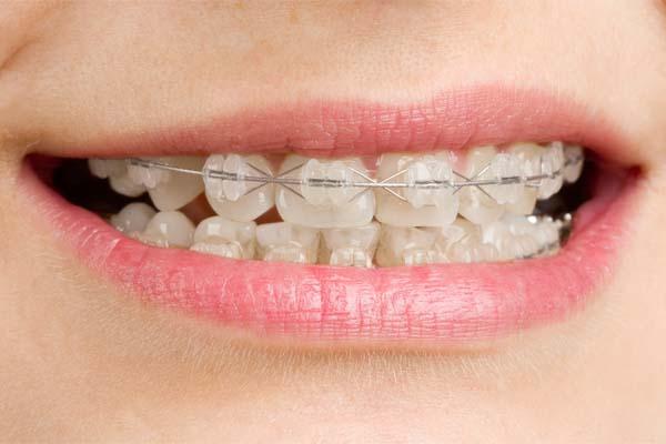 aparelho ortodontico invisivel Aparelho ortodôntico invisível
