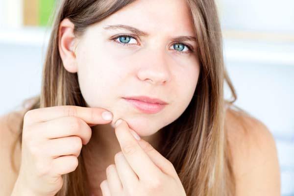 acne marcas A acne e suas marcas