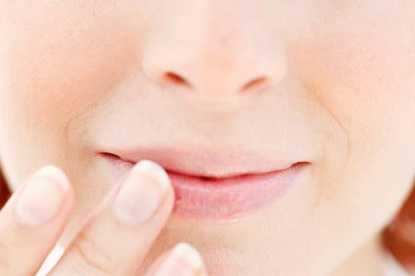 labios rachados Como tratar lábios rachados