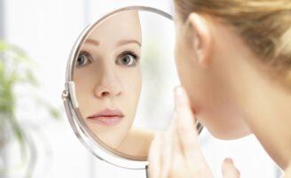 A acne e suas marcas