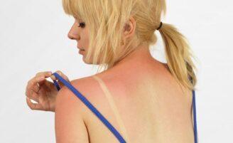 Como aliviar a pele queimada de sol