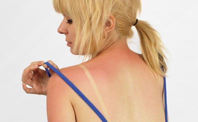 Como Aliviar A Pele Queimada De Sol Dicas De Mulher