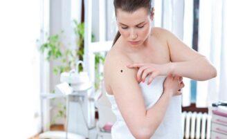 Câncer de pele: é possível se prevenir