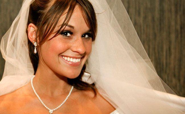 dentes brancos casamento Dentes brancos para o dia do casamento
