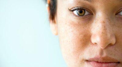 Aprenda a diferenciar os tipos de manchas na pele