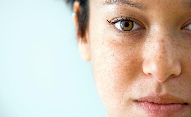 27ab7a153 Aprenda a diferenciar os tipos de manchas na pele - Dicas de Mulher