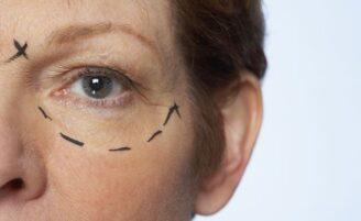 Tipos de cicatrizes pós-cirúrgicas