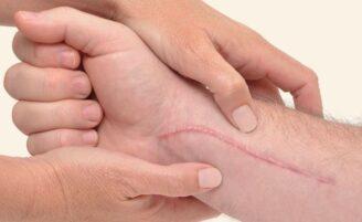 Cicatrizes: causas, tipos e tratamentos