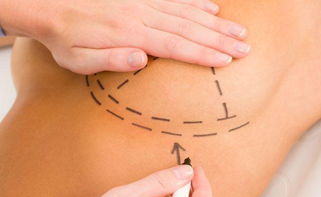 Mamoplastia CIPLARE