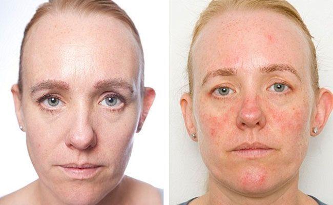 chemical peels Foto facial verses