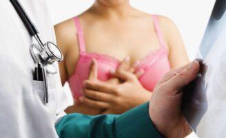 Cirurgia de reconstrução mamária: esclareça suas dúvidas