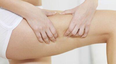 Manthus: melhora da celulite e redução da gordura localizada
