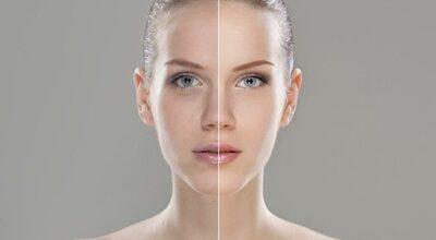 Mitos e verdades sobre o ácido retinoico