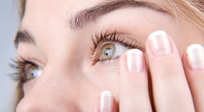 10 maneiras de tratar olheiras naturalmente