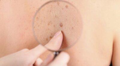 Entenda o que são as verrugas e como tratá-las