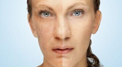 Como clarear a pele: tratamentos estéticos, produtos e dicas caseiras contra manchas