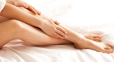 10 tratamentos caseiros para acabar com as varizes