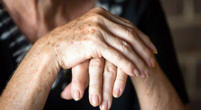 Artrose: médico fala das causas, sintomas, prevenção e tratamentos