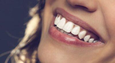 Como clarear os dentes em casa: 7 métodos caseiros eficazes