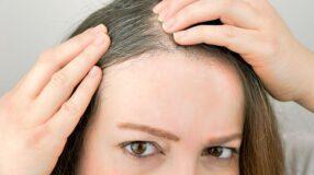 3 motivos pelos quais seu cabelo está ficando branco muito cedo