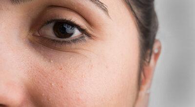 Milium na pele: o que é e como tratar de forma eficaz