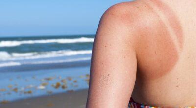 5 remédios caseiros para tratar queimaduras de sol