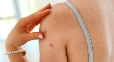 Queratose pilar: quando há excesso de queratina na pele