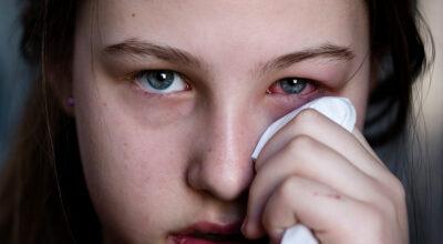 Conjuntivite: causas, sintomas e como manter seus olhos livres deste problema