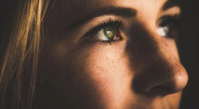 Melasma: saiba o que fazer para identificar, prevenir e tratar o problema