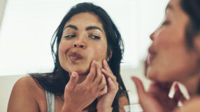 11 razões que podem explicar por que você não consegue se livrar da acne
