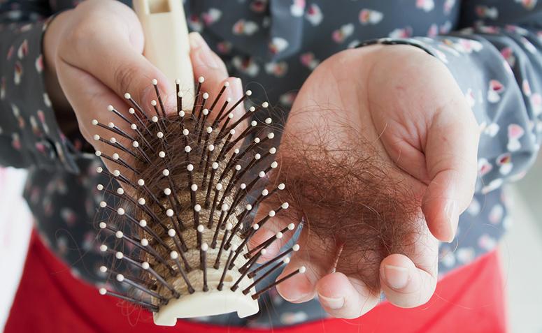 Resultado de imagem para queda de cabelo feminino