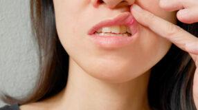 Remédios para afta: conheça soluções caseiras para aliviar esse incômodo