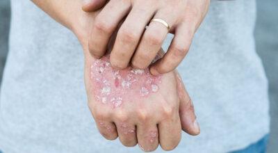 Psoríase: sintomas e tudo o que você precisa saber sobre a doença