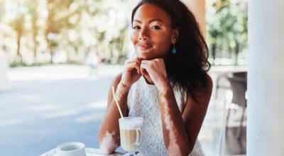 Vitiligo tem cura? Esclareça esta e outras dúvidas sobre a doença