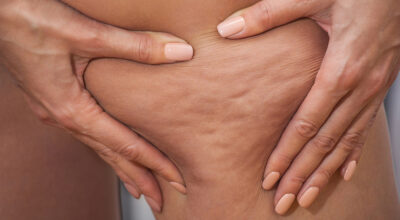 Celulite: conheça os tipos, causas e tratamentos disponíveis
