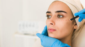Blefaroplastia: tudo o que você queria saber sobre a cirurgia das pálpebras