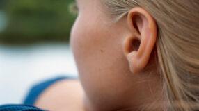 Otoplastia: como é feita, benefícios, riscos e recuperação