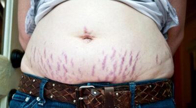Estrias vermelhas: causas, tratamentos e dicas para prevenir