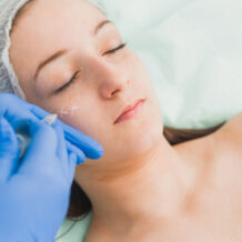 Sculptra®: conheça os benefícios desse ativo na pele