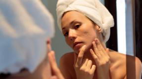 7 tipos de acne que podem afetar mulheres e como tratá-los