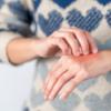 6 reações à queimadura de limão e primeiros cuidados para ficar atenta